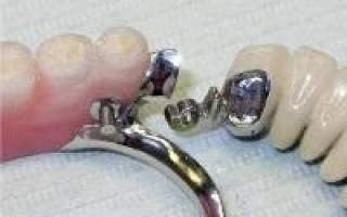 Протезирование зубов бюгель