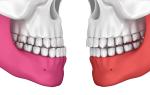 Исправление прикуса нижней челюсти