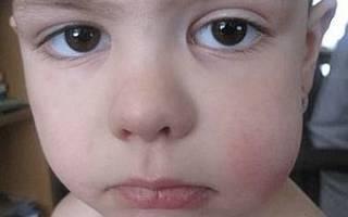 Припухла щека у ребенка
