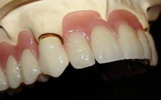 Пластмассовые зубы