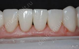 Зубы передние нижние
