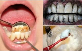 Как в домашних условиях снять зубной камень