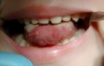 Глоссит симптомы и лечение