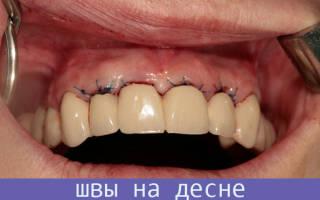 Зашивание десны после удаления зуба