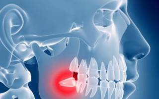 Как лечить зуб мудрости в домашних условиях