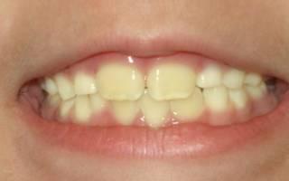 Желтые зубы у ребенка