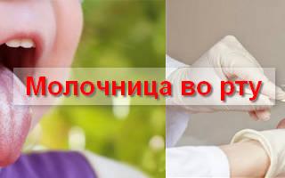 Какой врач лечит кандидоза ротовой полости