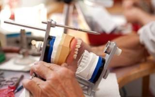Ремонт зубных протезов на дубровке