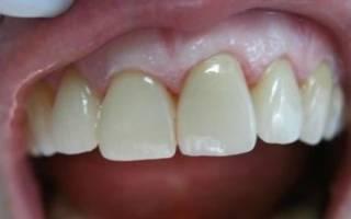 Что лучше коронка или наращивание зуба