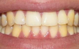 Желтые зубы от природы что делать