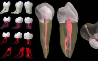 В каких случаях удаляют нерв из зуба