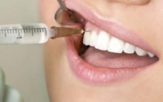 Заморозка при лечении зубов