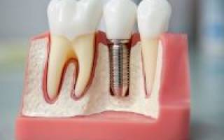 Зубные импланты плюсы и минусы