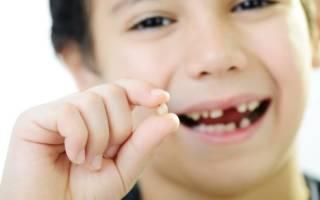 Как вытащить молочный зуб