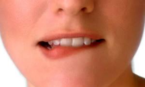 Язвочки на губах у ребенка