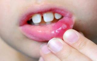 Лечение стоматита у детей 1 года