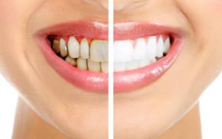 Белый камень на зубах