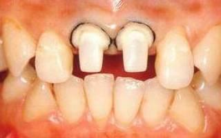 Обтачивание зубов под металлокерамику