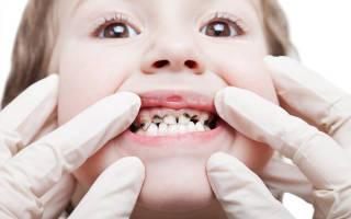 Почему чернеют молочные зубы