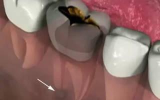 Периодонтит как снять боль