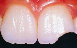 От чего разрушаются зубы