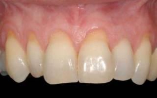 Можно ли нарастить десну на зуб