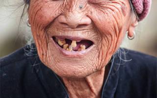 Что будет если не лечить кариес зубов
