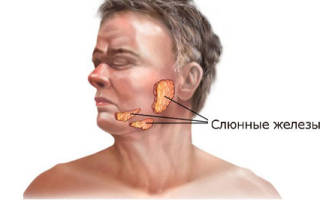 Болезни слюнных желез симптомы