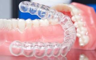 Силиконовая капа для выравнивания зубов