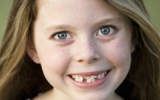Молочные зубы у ребенка растут криво