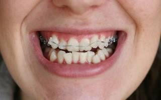 При установке брекетов какие зубы удаляют