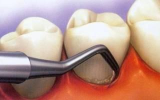 Темный налет на зубах причины
