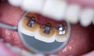Брекеты с внутренней стороны зубов