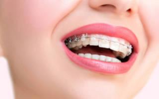 Почему не болят зубы после установки брекетов