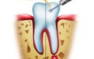 Удаление кисты на зубе