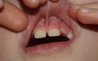 Зачем подрезать уздечку верхней губы