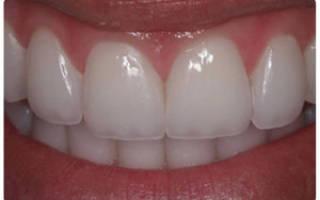 Люминиры на зубы что это такое