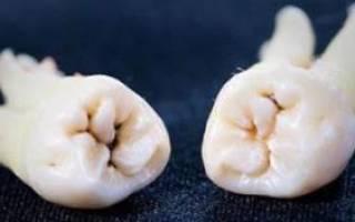 Температура после удаления зуба мудрости 38