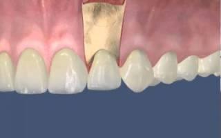 Резекция верхушки корня зуба после операции