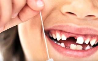 Почему не растет зуб после молочного