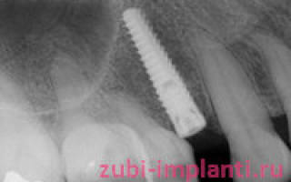 Свищ на десне после имплантации
