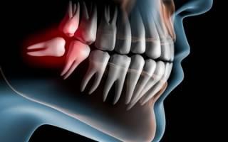 Сколько у человека зубов без зубов мудрости
