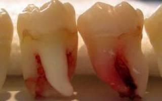 Больно ли выдирать коренной зуб