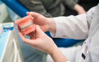 Кто такой врач ортодонт