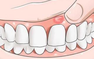 Что такое надкостница зуба