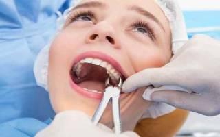 После того как вырвали зуб