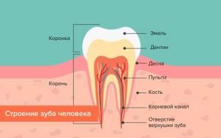 Чувствительность зубов после отбеливания