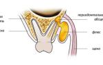 Флюс удаление зуба