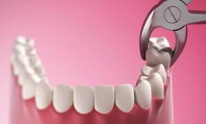 Можно ли беременным вырывать зубы мудрости