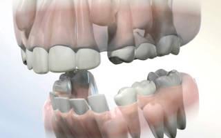 Ретинированный дистопированный зуб
